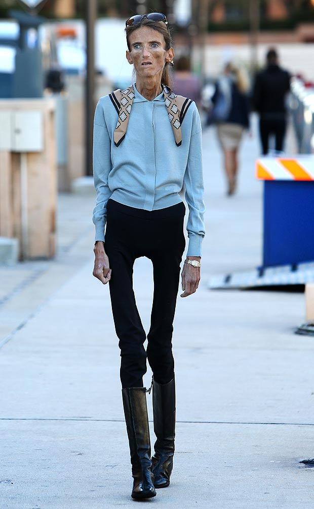 thigh gap, anorexia, bulimia, eating disorders, body image